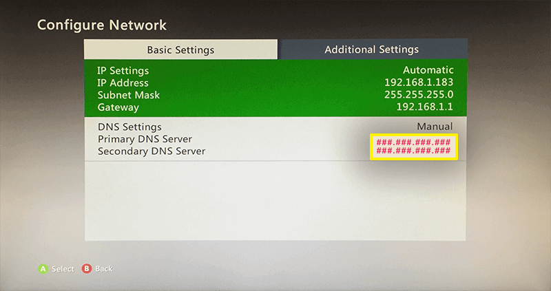 how to change dns on xbox 360